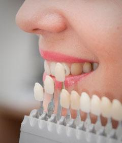 Versicherung Zähne